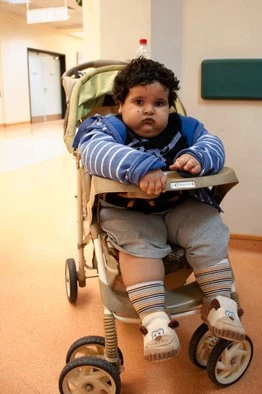 Child Bariatric